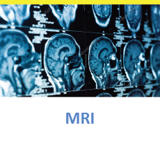 MRI Scan of the brain